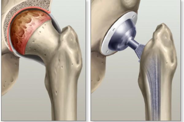 Protesi d'anca - Decorso e Rischi dell'Intervento